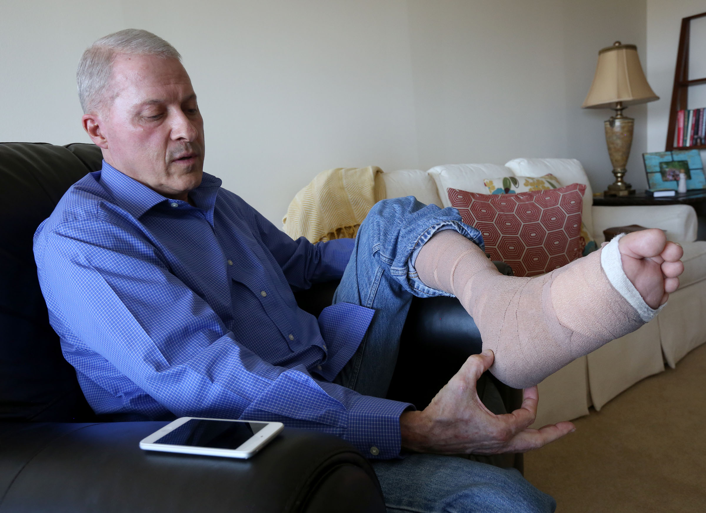 Richard Norby talks about his recovery from the March terrorist attack on the Brussels airport at home in Salt Lake City on Wednesday, July 27, 2016. Norby was in Brussels serving a mission for the Church of Jesus Christ of Latter Day Saints. In addition to shrapnel wounds and burns, Norby lost a significant amount of soft tissue on his leg and broke it in two places.