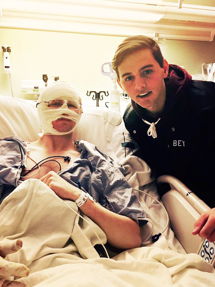 Elder Mason Wells, left, one of four Latter-day Saint missionaries wounded in the Brussels airport attack, poses for a picture with his brother Colby, in the burn unit at University Hospital in Salt Lake City on Tuesday, March 29, 2016.